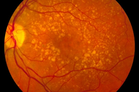 Research Indicates Avastin As Cheaper Alternative For AMD Treatment