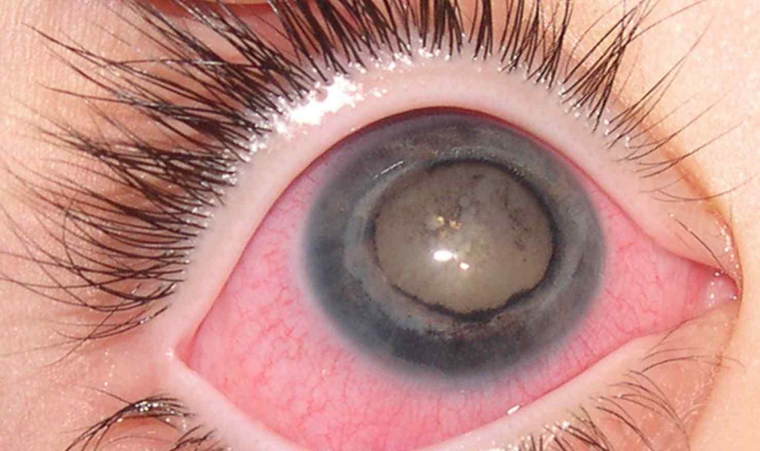 International Glaucome Association - Sight Warnings