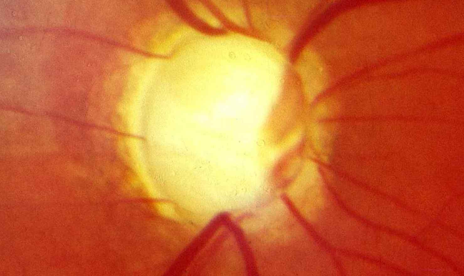 Implant To Measure Pressure And Help Treat Glaucoma