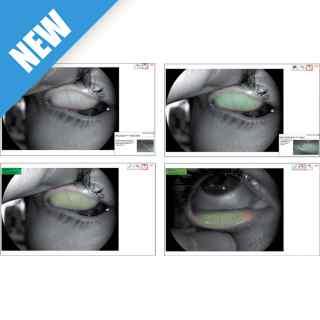 MGD Analysis Tool CSO Cobra HD